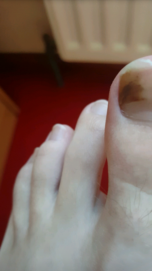 Possible melanoma in toenail | Cancer Chat